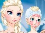 Frozen Elsa Tratamento de Beleza
