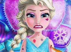Frozen Elsa no Médico